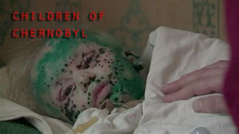 The true story and the real pain of Chernobyl children